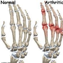 Arthritis_Herbs and Ayurvedic Remedies, Arthritis Symptom and Other Treatments