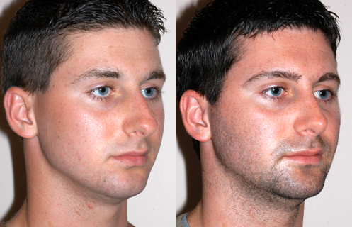 Rhinoplasty For Males: Carve The Contour Of A Man Nose