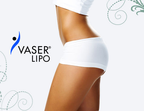 Vaser Lipo – 10 Essential Questions & Answers